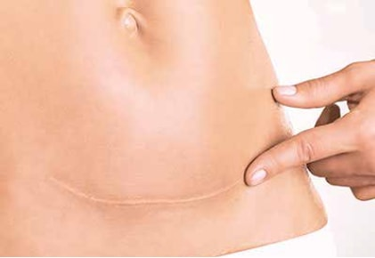KELO-COTE® is effective on c-section scars